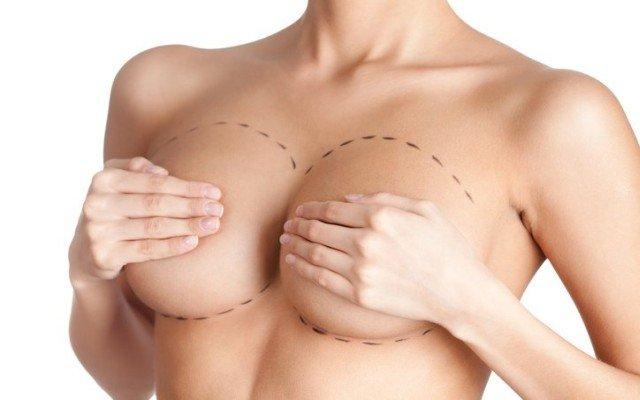 cirugia-mamaria-elevacion-pechos-iStock-